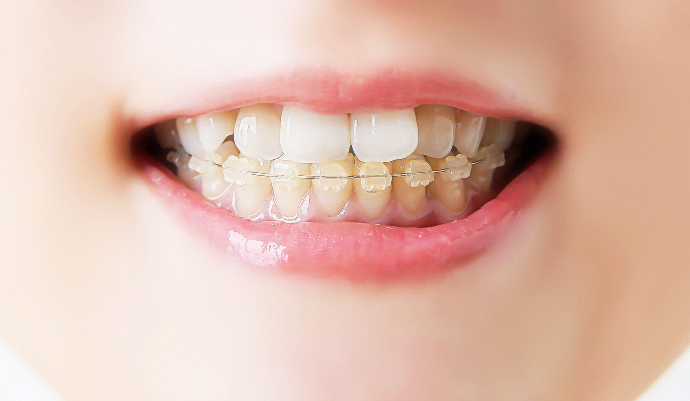 歯科医師宝田恭子先生が教える大人の歯科矯正