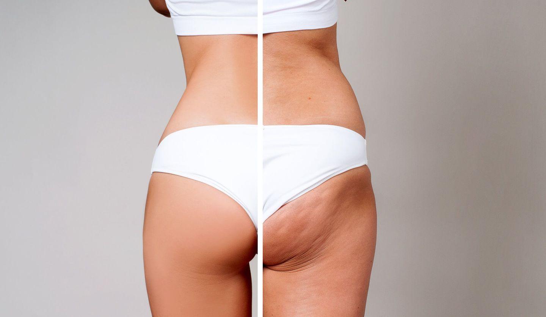 左は肌にハリがあり綺麗なお尻の形をした女性の後ろ姿、右はセルライトが目立ちショーツラインが段になっている女性の後ろ姿
